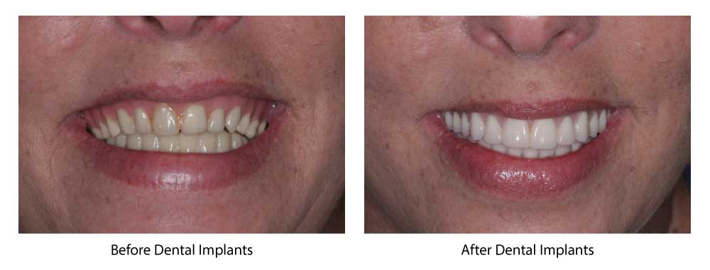 cosmetic dentistry okc