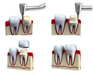 okc-dental-crowns