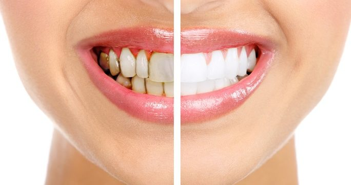 how to tell if you have gum disease