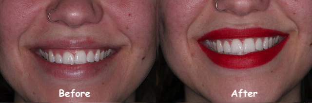 Gum Lift Before After
